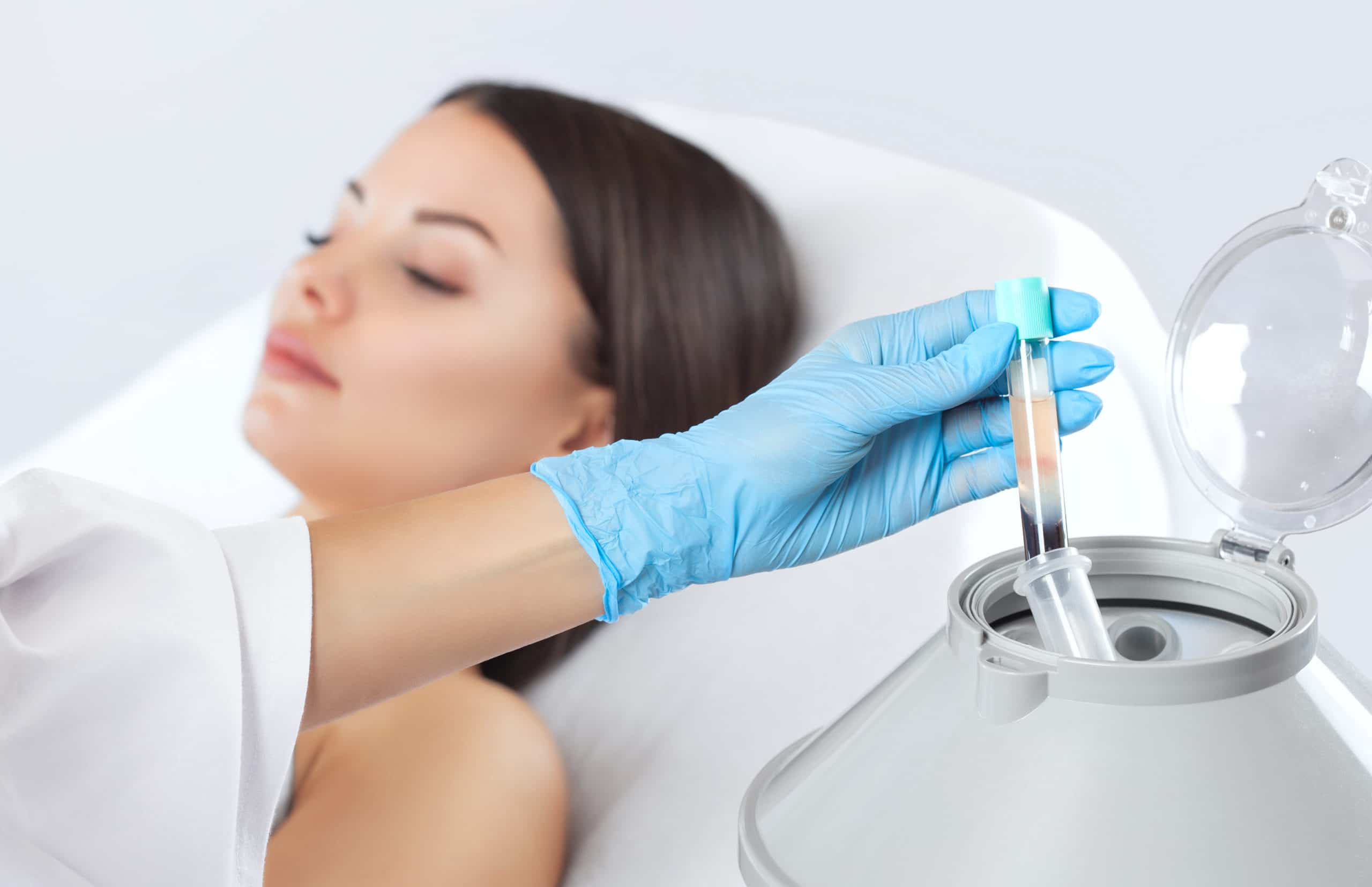 PRP Treatment with female patient at med spa